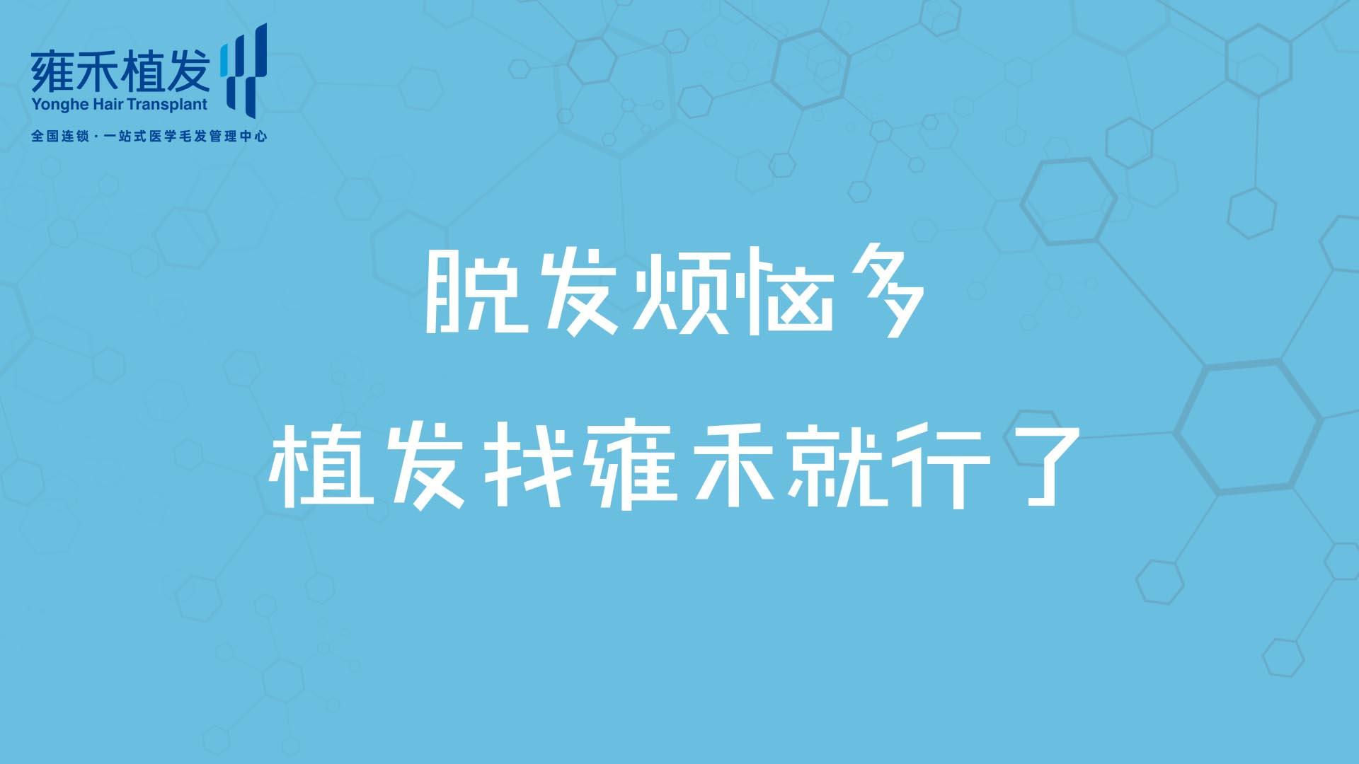福州雍禾鬓角种植之后会不会再次脱落?