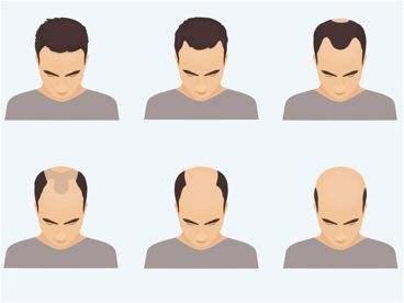 头发加密怎么收费?哪里做头发加密效果好