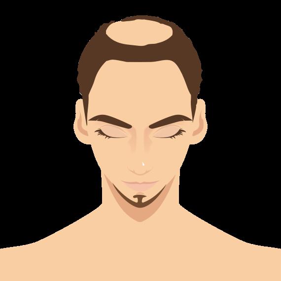 m型脱发可以通过种植头发技术改善吗?