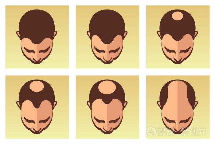 植发后要注意哪些?