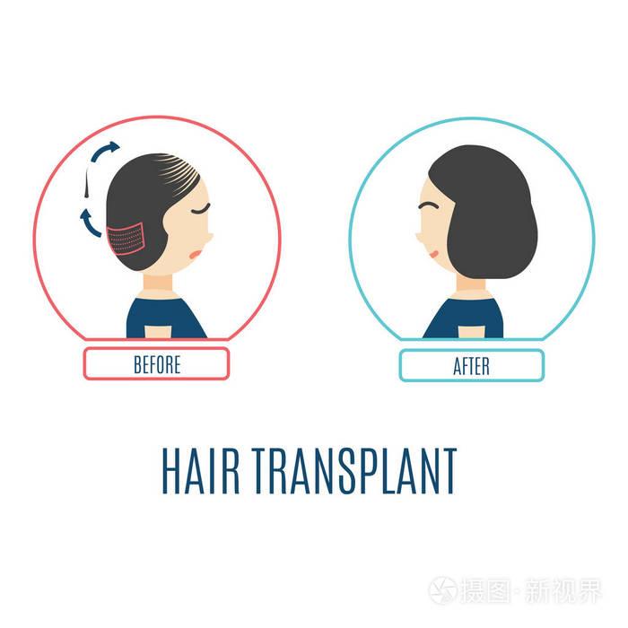 眉毛移植和头发种植原理一样吗?