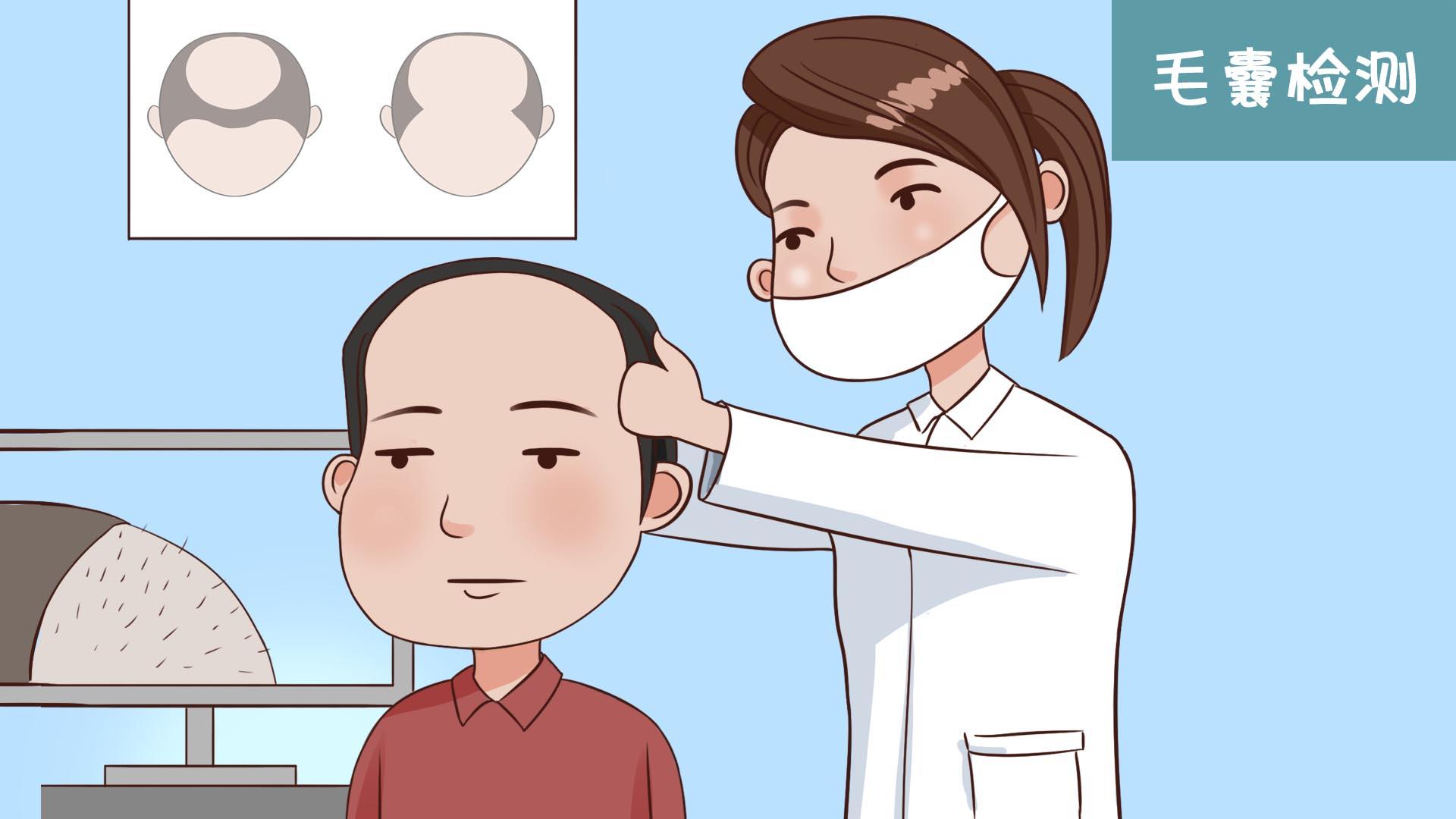 疤痕植发有年龄限制吗?