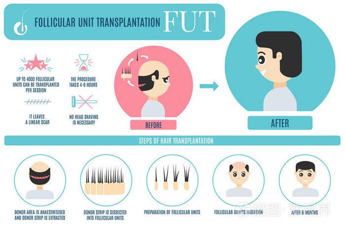 植发的收费标准是什么?