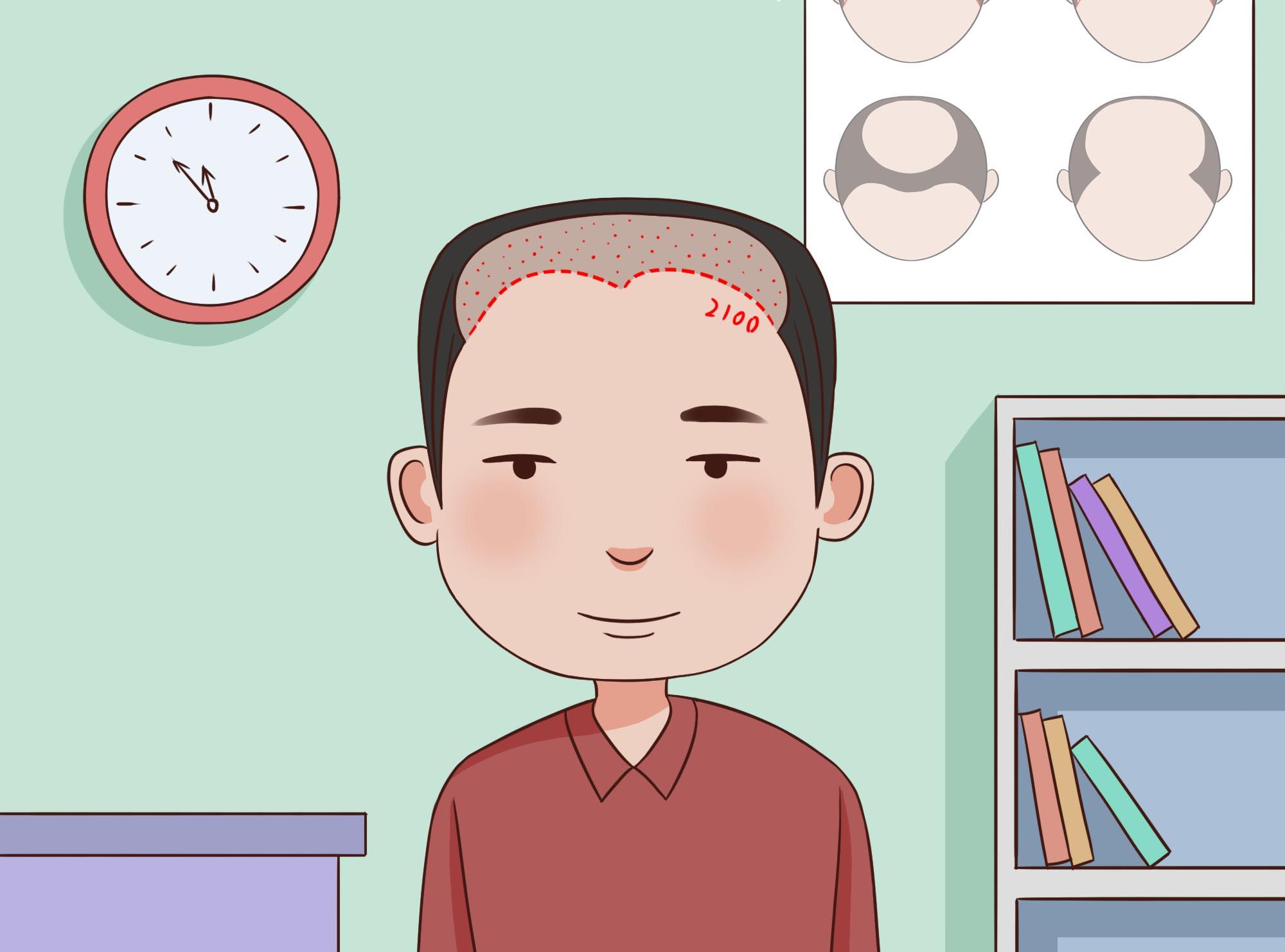 福州植发手术多少钱?