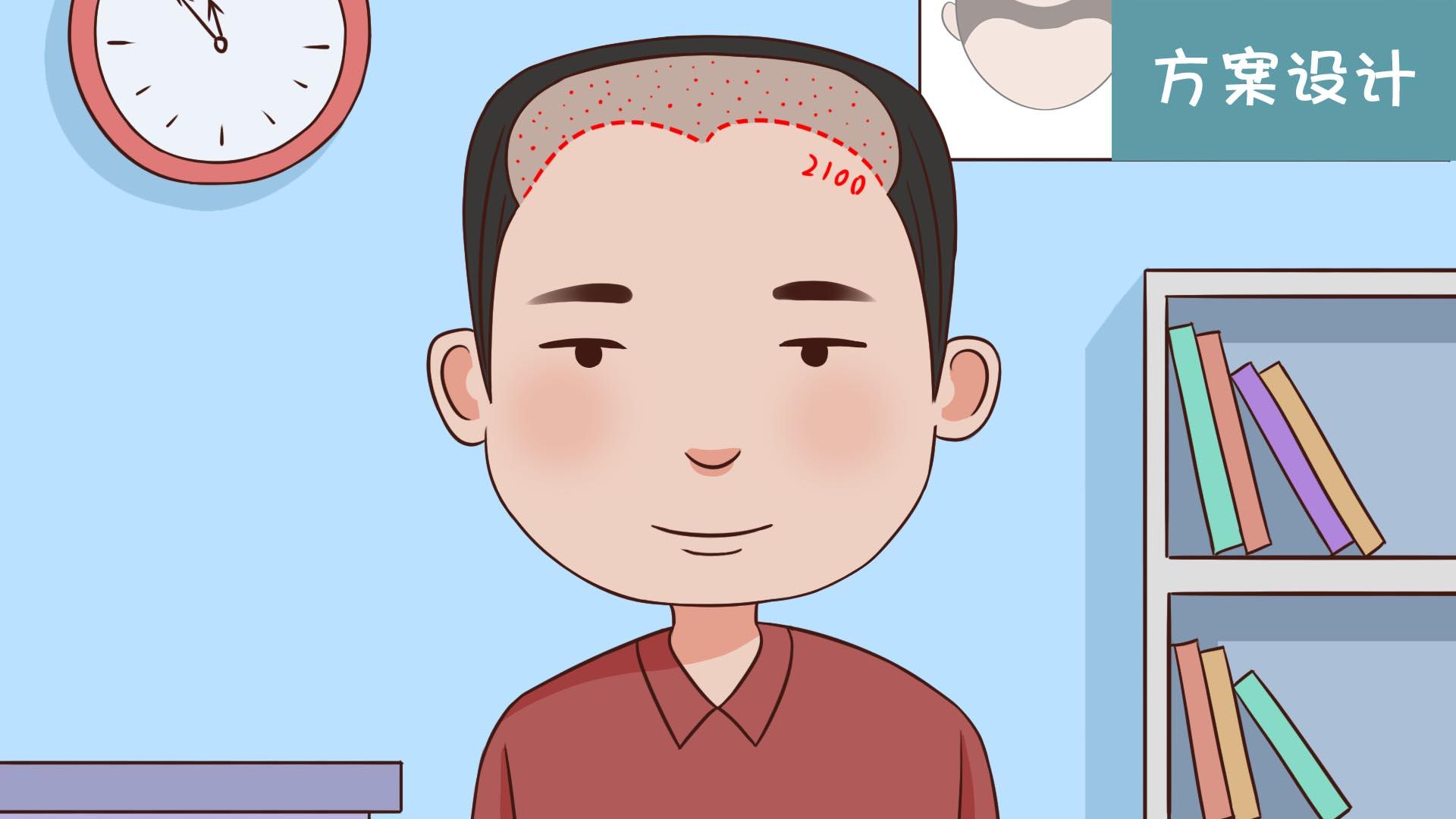 做头发种植有限制年龄吗?