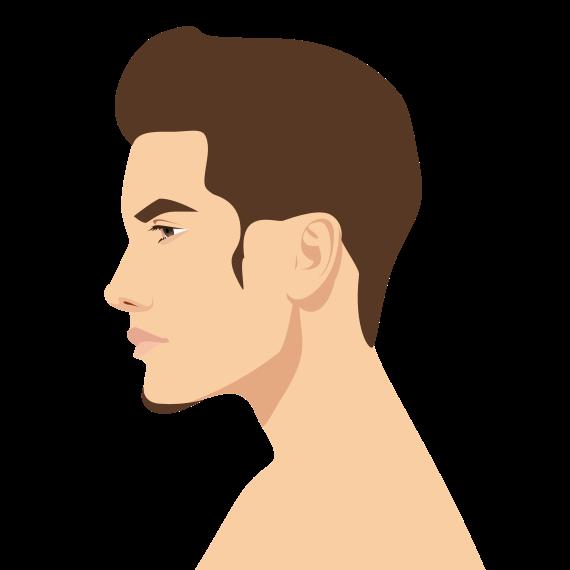 植发手术常见副作用有哪些,如何预防?